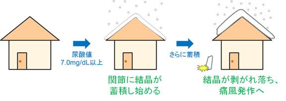 痛風発作と雪の関係